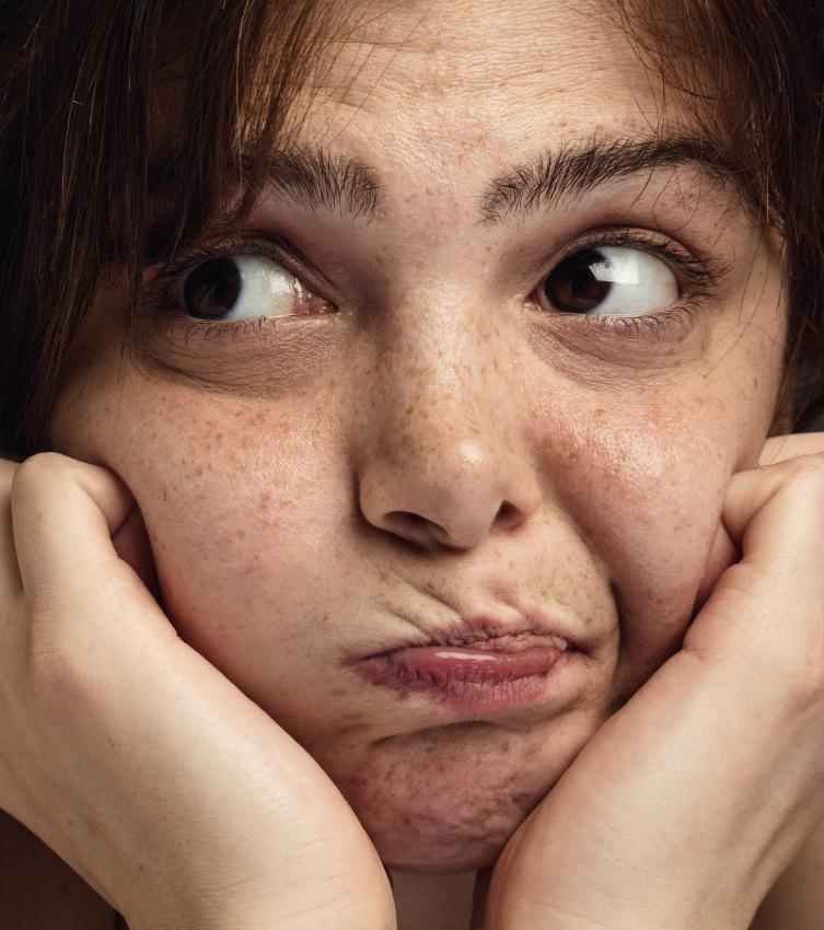 L'acné de l'adulte