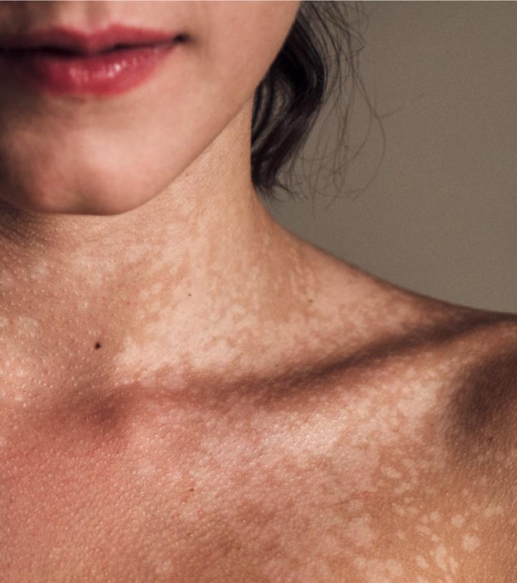 Taches pigmentaires sur le visage : causes et solutions