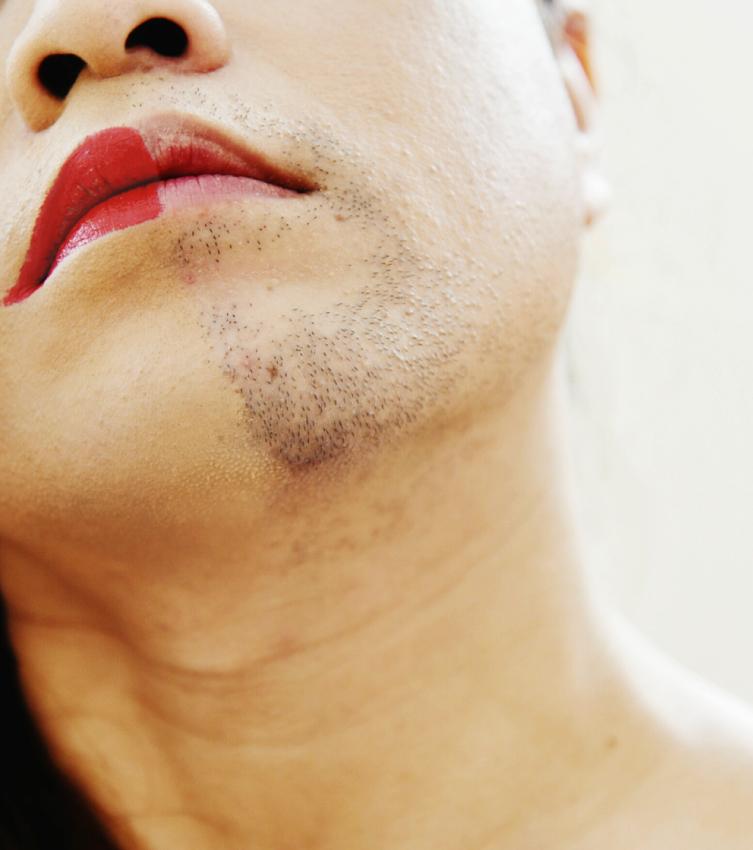 Transgenre : accompagner les changements de la peau
